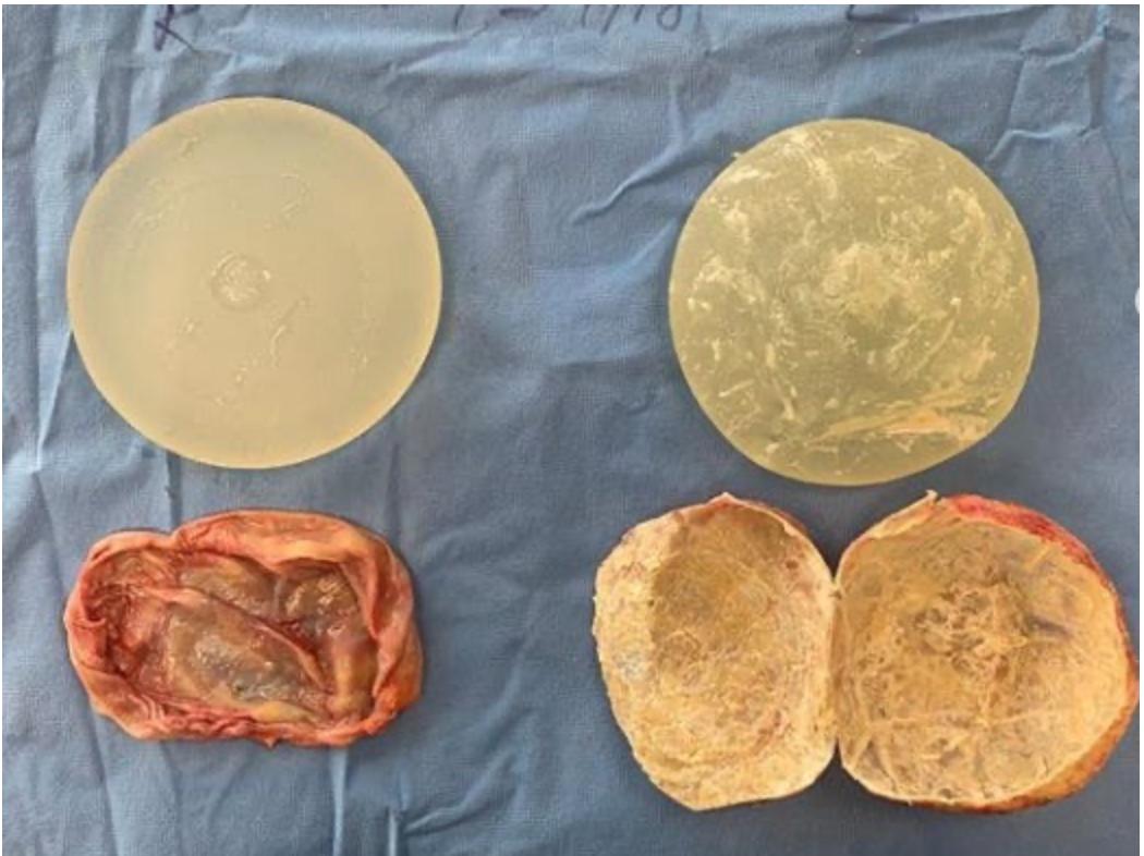 Implantat och kapsel