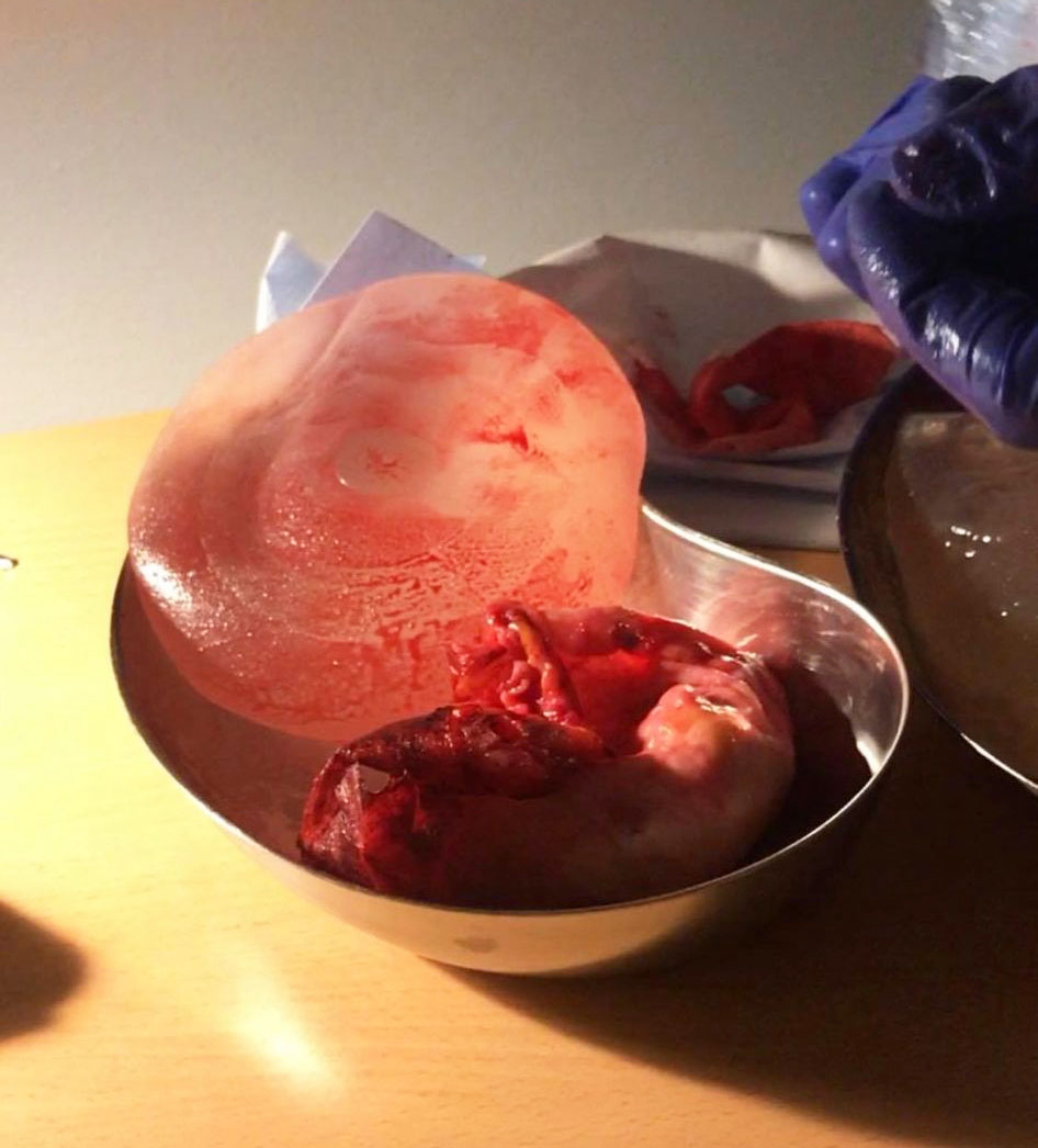 Sprucket bröstimplantat efter explant